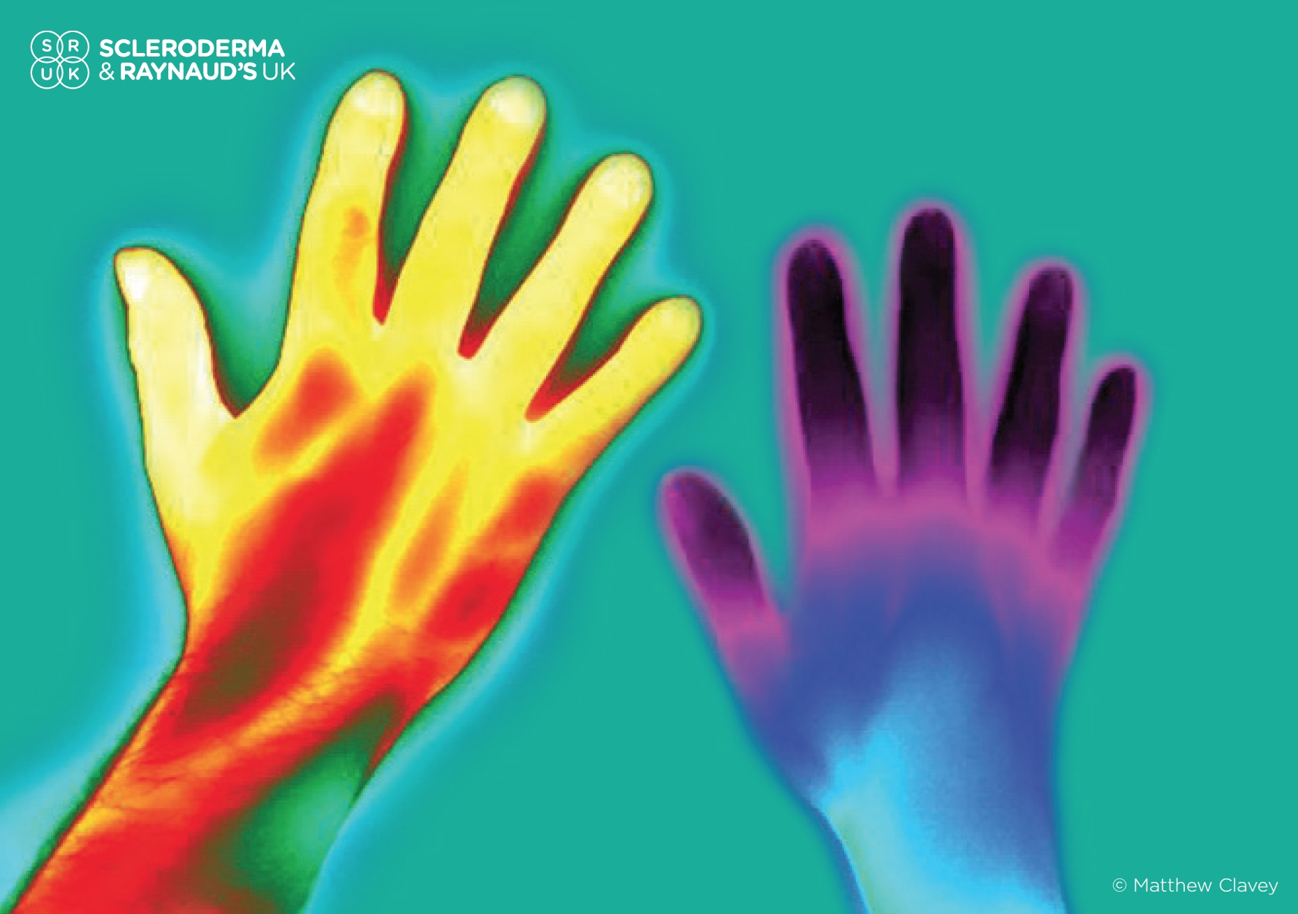 February is Raynaud's awareness month get involved #raiseyourhands